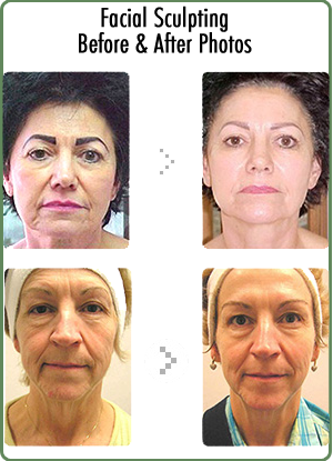 Facial Sculpting Results